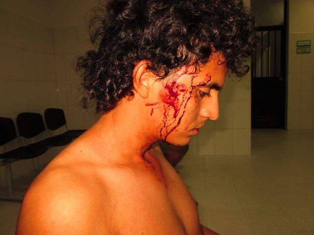 Deyder Hernández muestra los golpes que recibió. Foto: Alberto Buitre